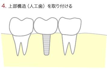 上部構造(人口歯)を取り付ける