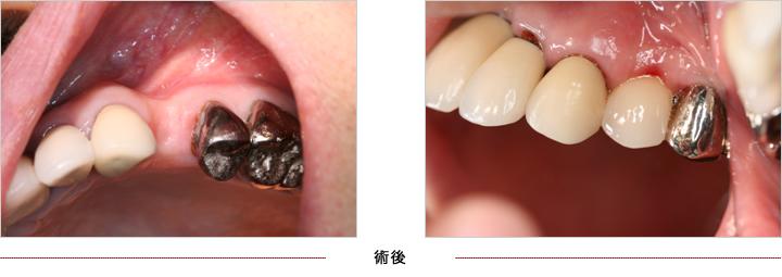 インプラント症例5 奥歯1本欠損